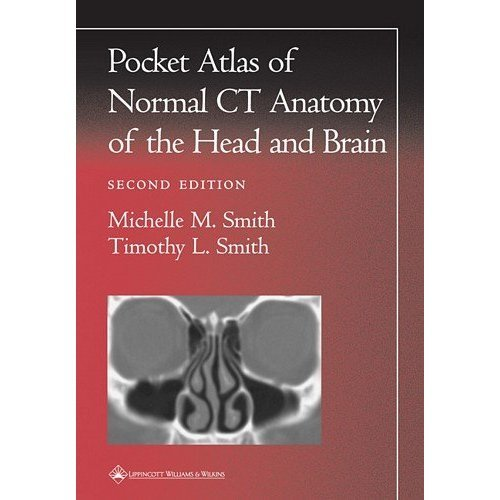 Pocket Atlas of Normal CT Anatomy of the Head and Brain (Radiology Pocket Atlas Series)